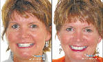 Soddy Daisy Smiles helps patients improve looks