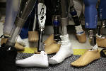 Local amputee slams Medicare proposal limiting access to high-tech prostheses