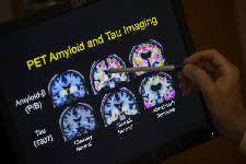 Landmark study could provide clues about Alzheimer's